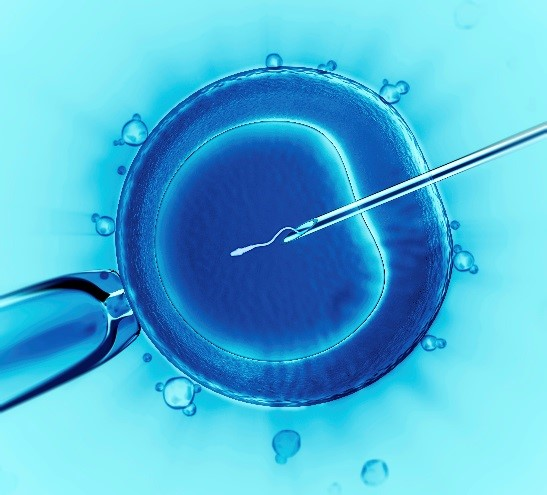 Screening all 24 chromosome pairs for a successful cycle: IVF and genetic diagnosis